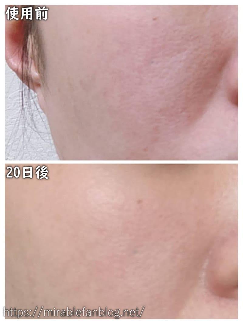 ミラブル利用前と利用20日後の肌