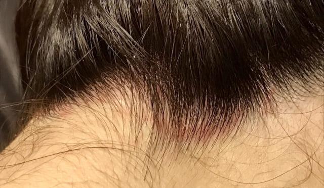 頭皮が荒れている女性